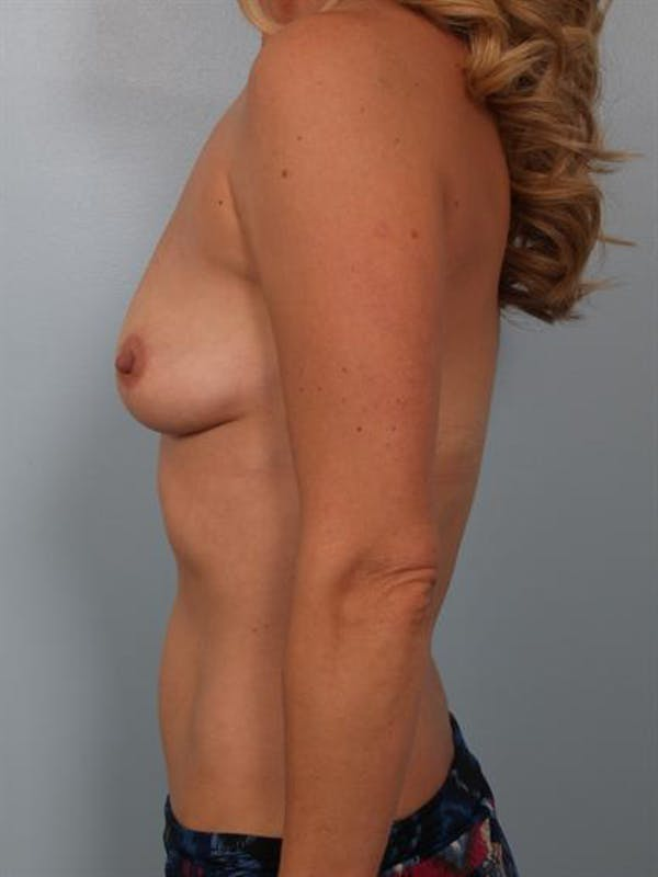 Breast Lift Gallery - Patient 1311098 - Image 3