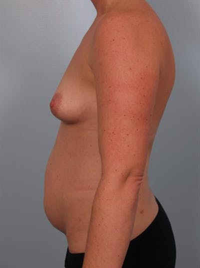Tummy Tuck Gallery - Patient 1311097 - Image 1