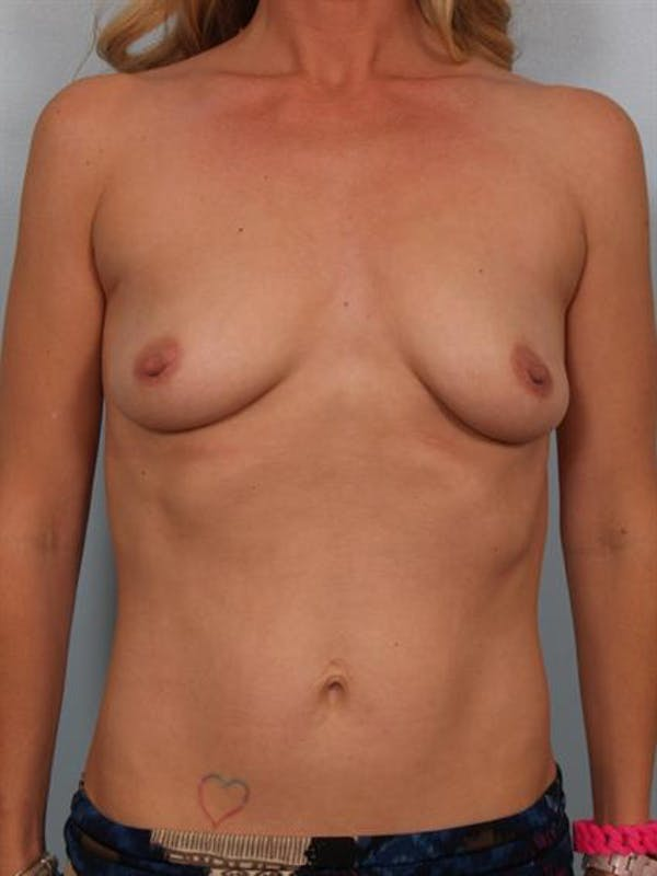 Breast Lift Gallery - Patient 1311098 - Image 1