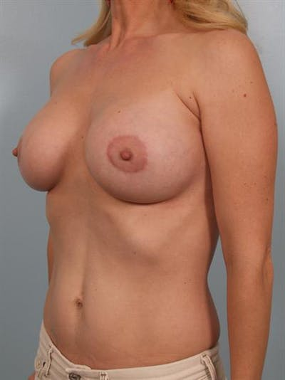 Breast Lift Gallery - Patient 1311098 - Image 6
