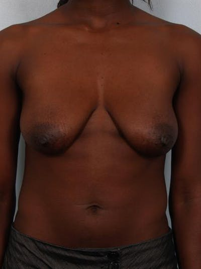 Breast Lift Gallery - Patient 1311104 - Image 1