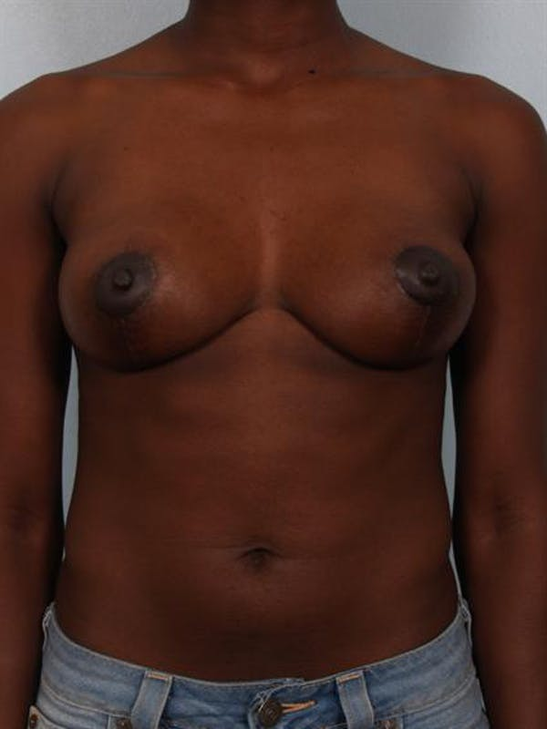 Breast Lift Gallery - Patient 1311104 - Image 2