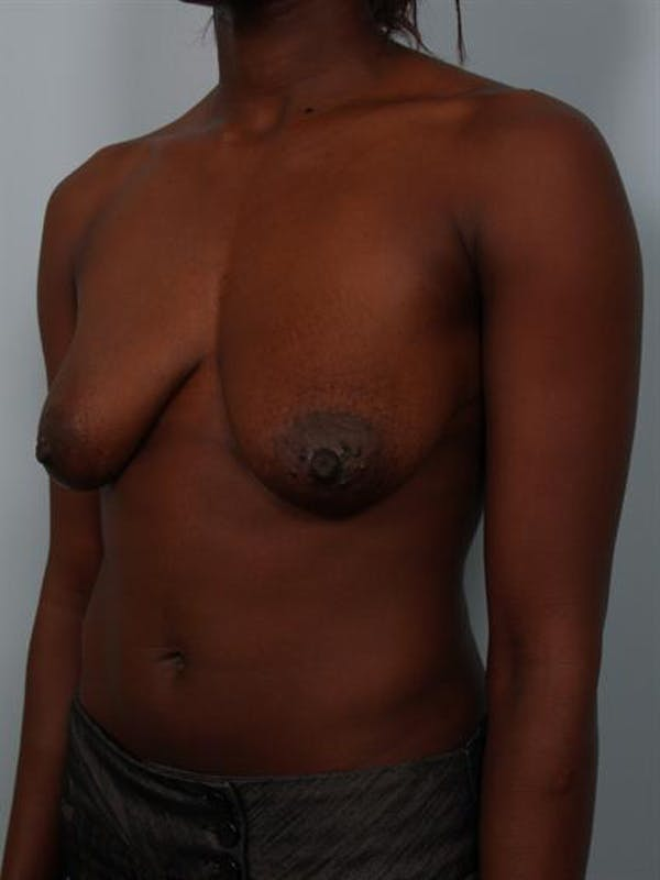 Breast Lift Gallery - Patient 1311104 - Image 3