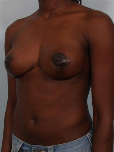 Breast Lift Gallery - Patient 1311104 - Image 4