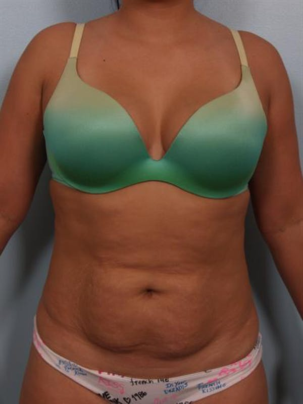 Tummy Tuck Gallery - Patient 1311106 - Image 1