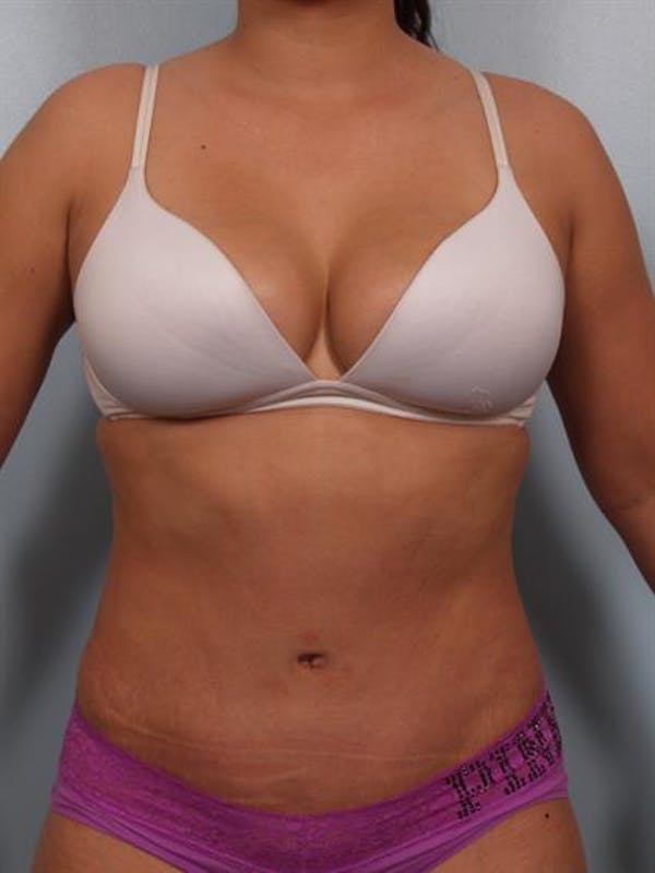 Tummy Tuck Gallery - Patient 1311106 - Image 2
