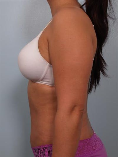 Tummy Tuck Gallery - Patient 1311106 - Image 4