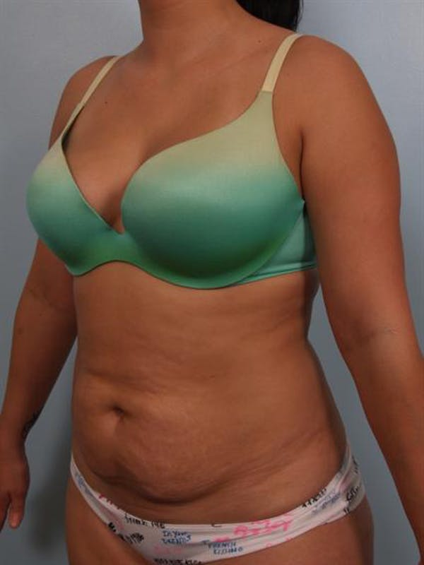Tummy Tuck Gallery - Patient 1311106 - Image 5