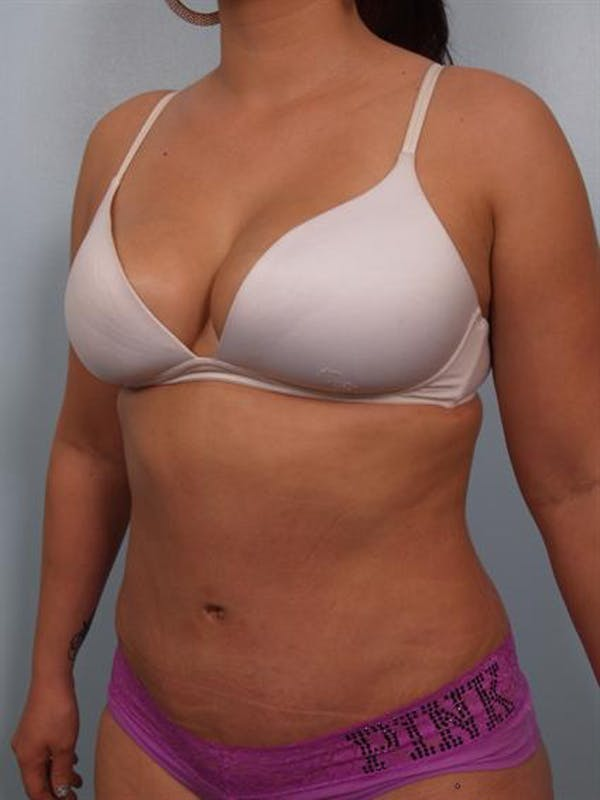 Tummy Tuck Gallery - Patient 1311106 - Image 6