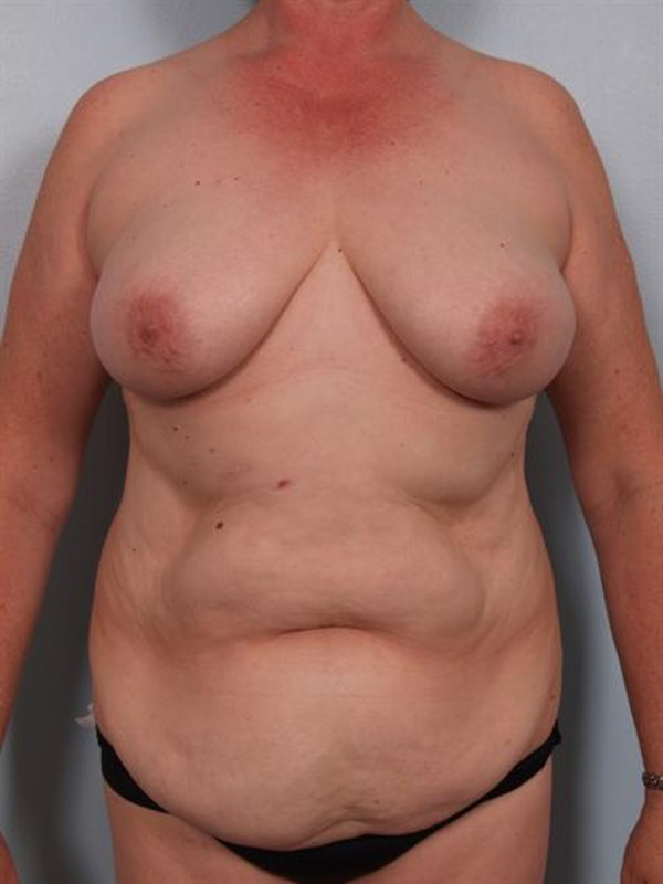 Power Assisted Liposuction Gallery - Patient 1311109 - Image 3