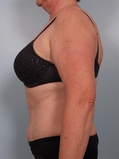 Power Assisted Liposuction Gallery - Patient 1311109 - Image 6