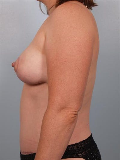 Tummy Tuck Gallery - Patient 1311114 - Image 2
