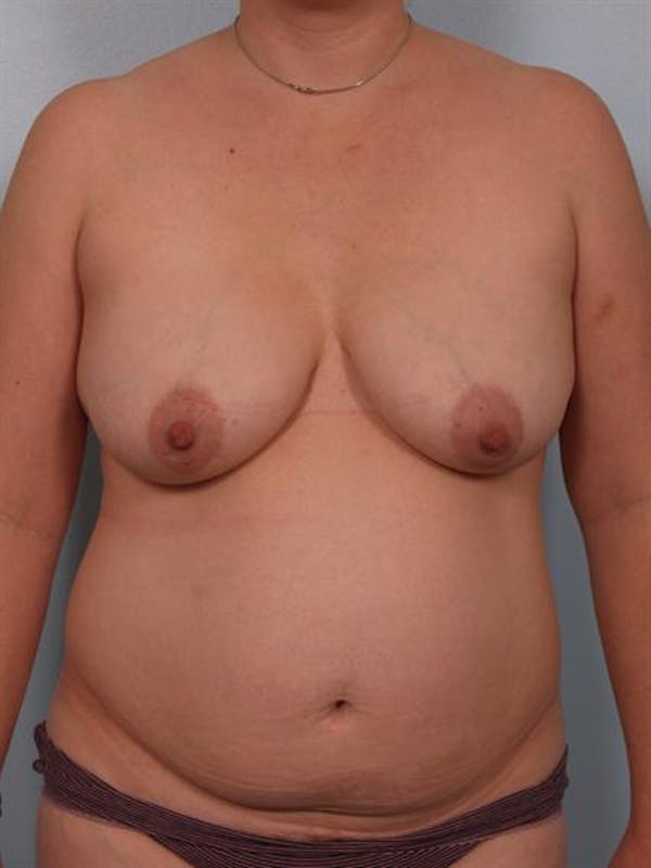 Tummy Tuck Gallery - Patient 1311114 - Image 3