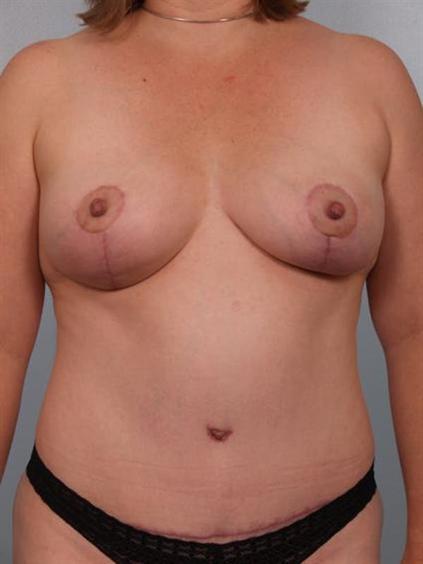 Tummy Tuck Gallery - Patient 1311114 - Image 4