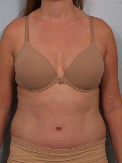 Power Assisted Liposuction Gallery - Patient 1311115 - Image 2