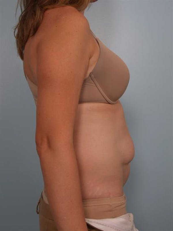 Power Assisted Liposuction Gallery - Patient 1311115 - Image 3