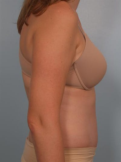 Power Assisted Liposuction Gallery - Patient 1311115 - Image 4