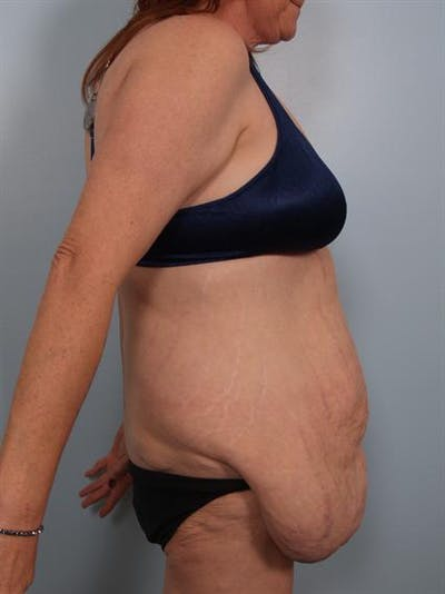 Tummy Tuck Gallery - Patient 1311116 - Image 1