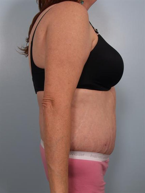 Tummy Tuck Gallery - Patient 1311116 - Image 2