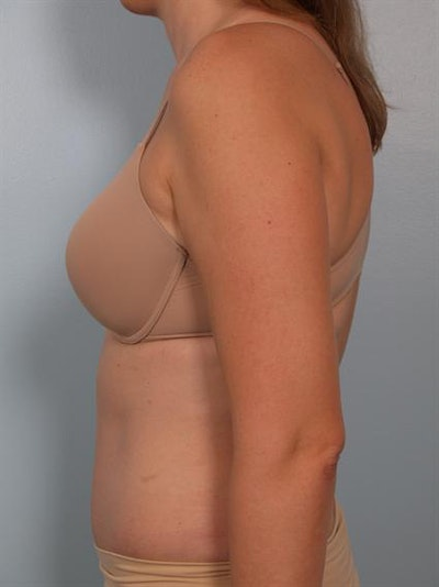 Power Assisted Liposuction Gallery - Patient 1311115 - Image 6