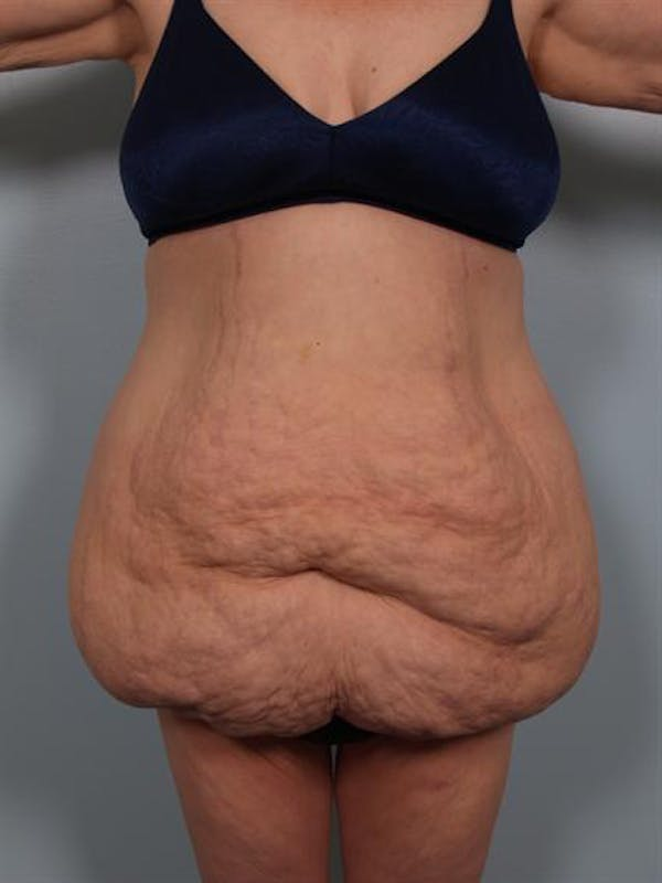 Tummy Tuck Gallery - Patient 1311116 - Image 3