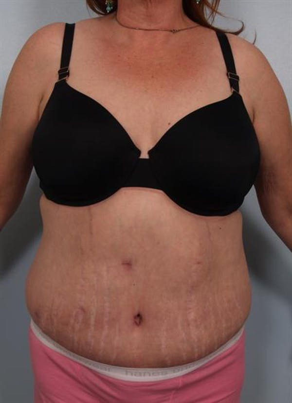Tummy Tuck Gallery - Patient 1311116 - Image 4
