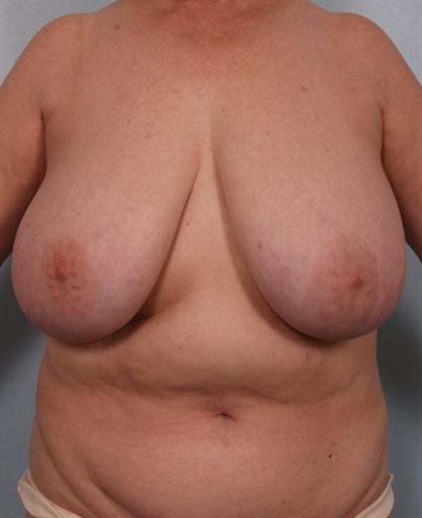 Power Assisted Liposuction Gallery - Patient 1311117 - Image 1