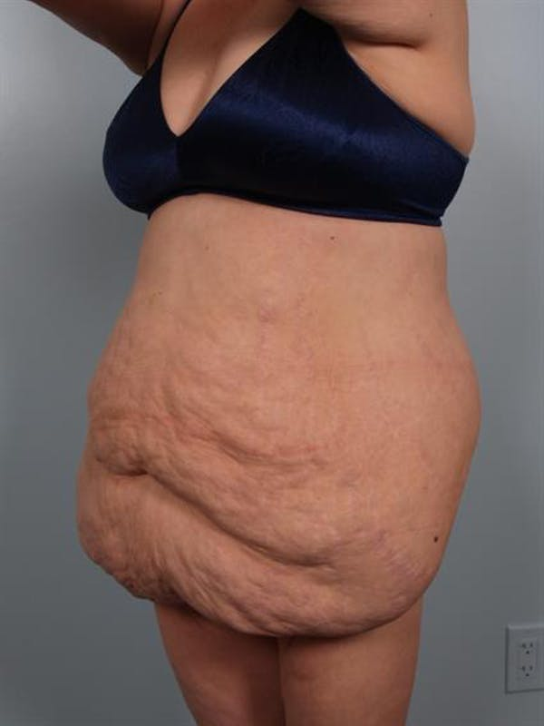 Tummy Tuck Gallery - Patient 1311116 - Image 5