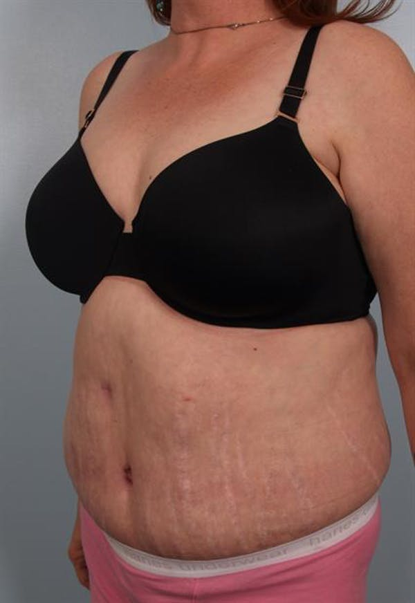 Tummy Tuck Gallery - Patient 1311116 - Image 6