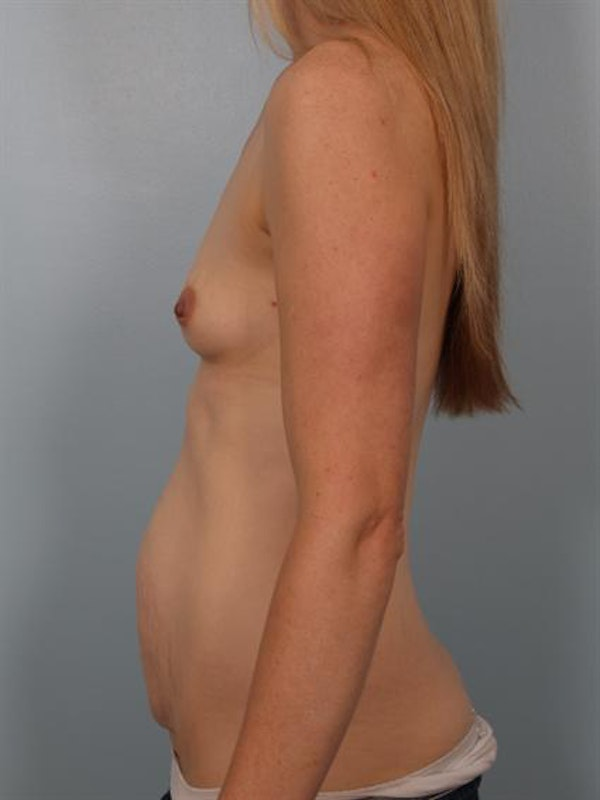 Tummy Tuck Gallery - Patient 1311118 - Image 1