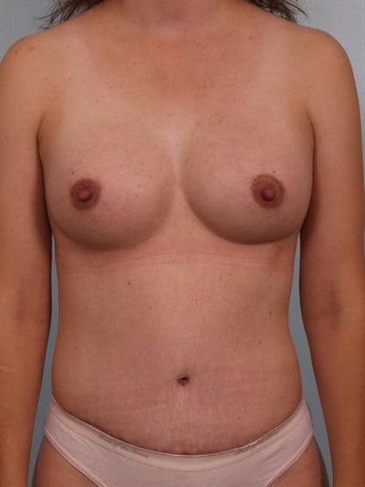Power Assisted Liposuction Gallery - Patient 1311119 - Image 2