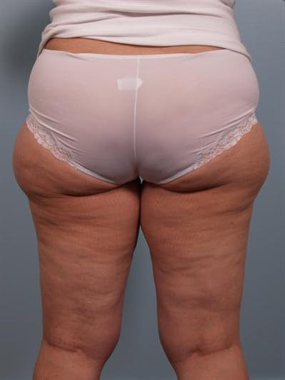 Power Assisted Liposuction Gallery - Patient 1311121 - Image 1