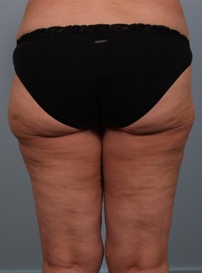 Power Assisted Liposuction Gallery - Patient 1311121 - Image 2