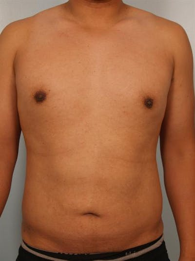 Power Assisted Liposuction Gallery - Patient 1311122 - Image 4