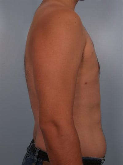 Power Assisted Liposuction Gallery - Patient 1311124 - Image 2
