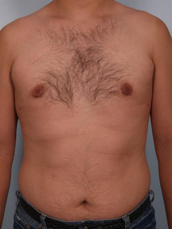 Power Assisted Liposuction Gallery - Patient 1311124 - Image 4