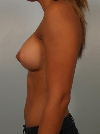 Power Assisted Liposuction Gallery - Patient 1311128 - Image 6