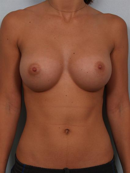 Straight on after photo of breast augmentation - 1