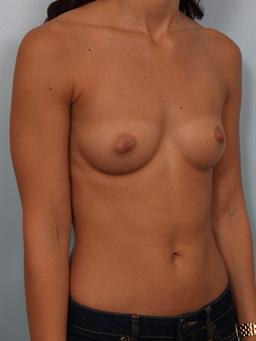 Angled before photo of breast augmentation - 1
