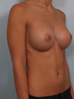 Angled after photo of breast augmentation - 1