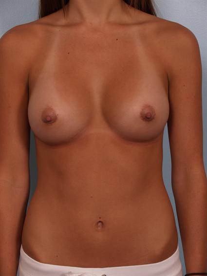Straight on after photo of breast augmentation - 2
