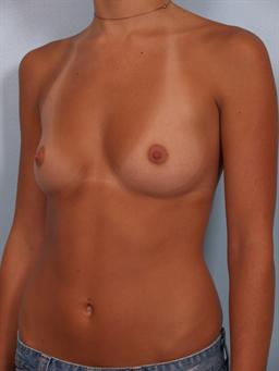Angled before photo of breast augmentation - 2