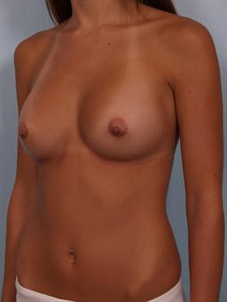 Angled after photo of breast augmentation - 2