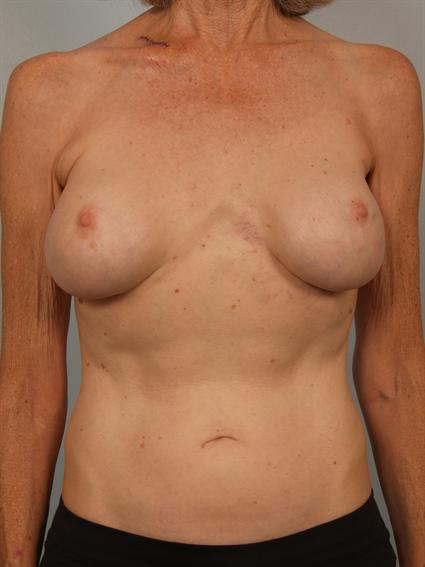 Straight on before photo of breast implant revision