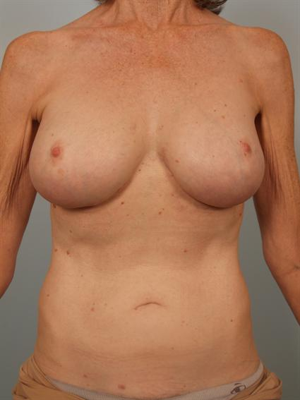 Straight on after photo of breast implant revision