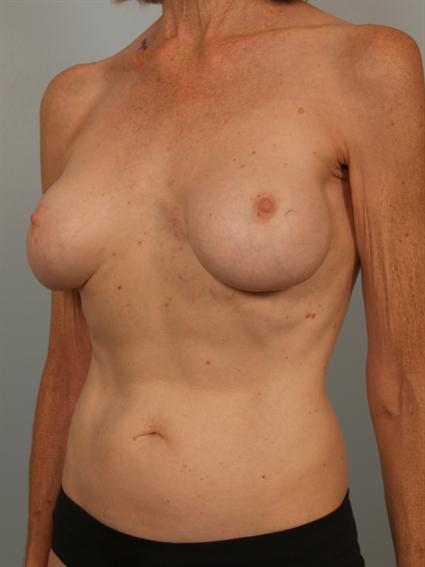 angled before photo of breast implant revision