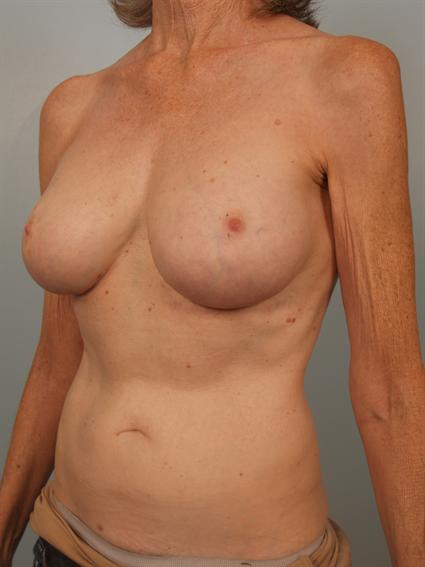 Angled after photo of breast implant revision