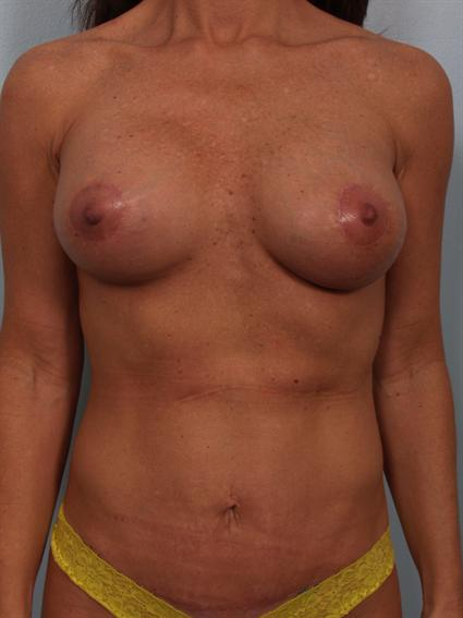 Straight on after photo of Breast Implant Revision/Breast Lift/Tummy Tuck