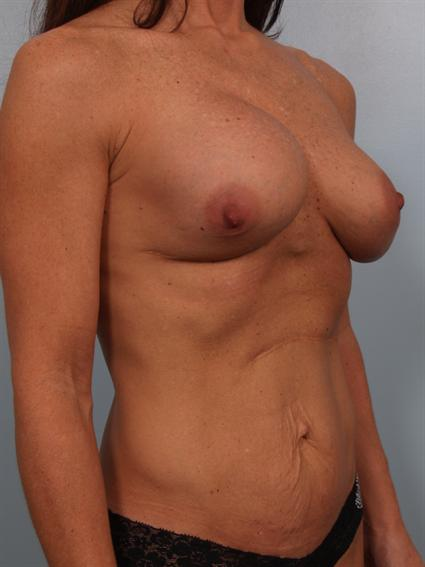 angled before photo of Breast Implant Revision/Breast Lift/Tummy Tuck