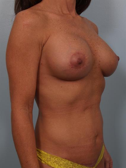 Angled after photo of Breast Implant Revision/Breast Lift/Tummy Tuck